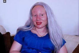 """Benvinda Esperança: """"Os albinos não curam doenças virais. Nós não somos medicamento"""""""